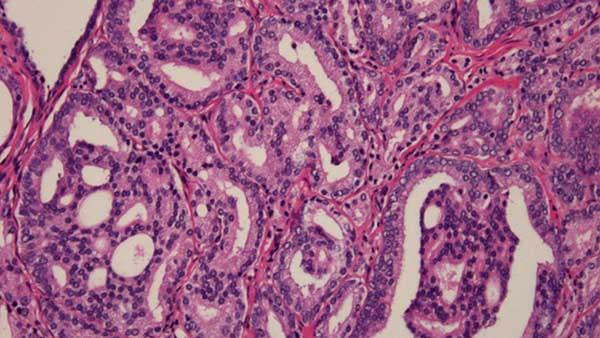 centre d urologie sud parisien urologie paris sud chirurgie urologue chirurgien cancerologie lithiase urinaire quincy sous senart 91480 paris cancer de prostate