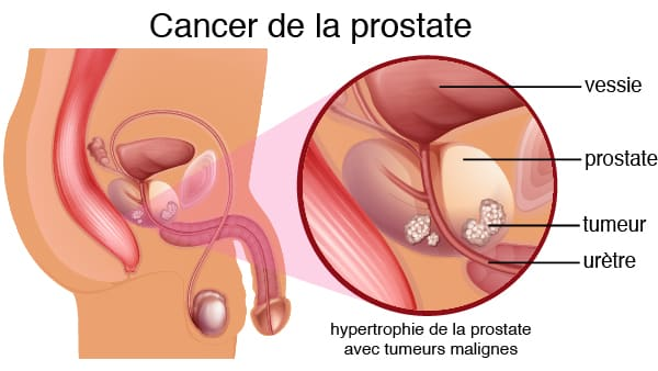 cancer prostate symptome cancer de la prostate traitement docteur vincent elalouf centre urologie paris sud urologue paris 16