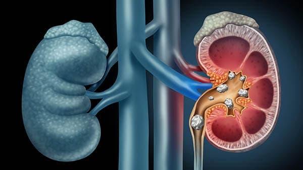 qu est ce qu une lithiase renale gauche lithiase coralliforme rein gauche lithiase definition lithiase renale traitement dr elalouf